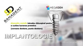 implantologie sanadent bucuresti