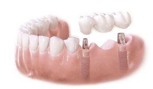 care sunt beneficiile implantului dentar