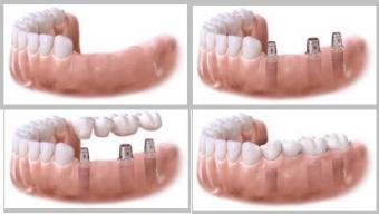 inlocuire dinti cu implanturi dentare