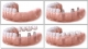 Inlocuire dinti cu implanturi dentare 1100Euro
