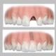Inlocuire dinte cu implant dentar 450Euro