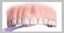 intretinerea implantului dentar zilnic