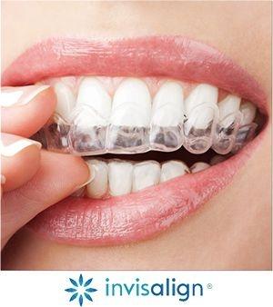 Tipuri de parate dentare,fix sau mobil