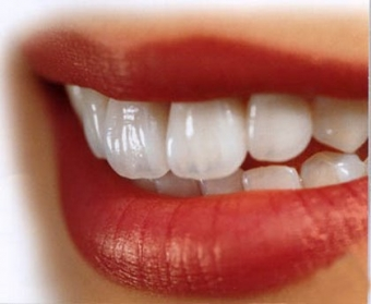 Imagine Ce lucrare dentara sa aleg ?