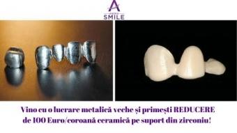 Imagine Lucrare ceramica pe zirconiu 990 lei in loc de 1450 lei