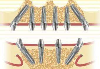 implant dentar sistem german