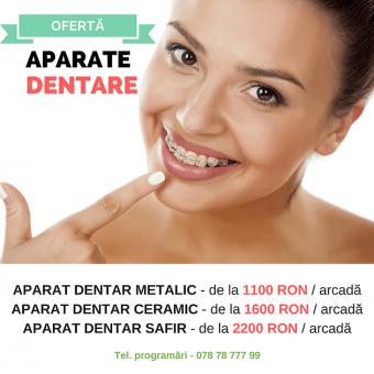 oferta-aparat-dentar