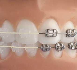Aparatul dentar metalic vs. ceramic