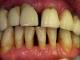 Parodontita marginala cronica (PMC), cunoscuta sub numele de parodontoza