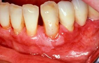 Ce este boala parodontala PARADONTOZA