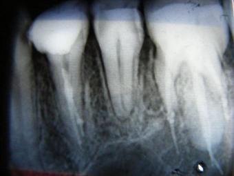 Cum se infecteaza un dinte?