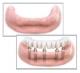 Reabilitare arcada pe implanturi dentare