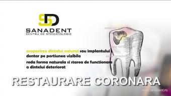 restaurare coroana dentara