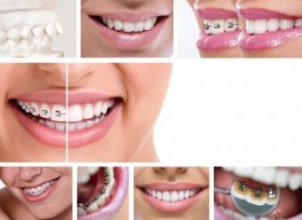 Imagine Aparat dentar - ortodontia