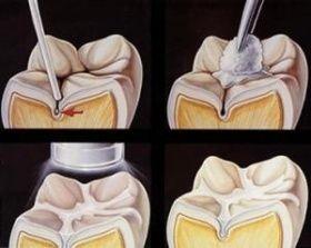 Sigilarea dentara