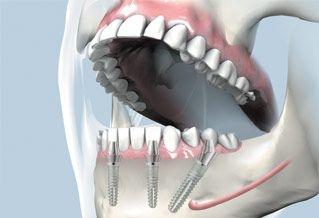 extractie implantare si restaurare implant dentar