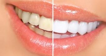 Imagine Ce implica albirea dentara profesionala?