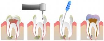 Tratament dinte infectat, tratamentul de canal