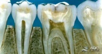 De ce dintii tratati pe canal pot da senzatia de durere