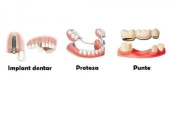 Imagine Metode de inlocuire a dintilor lipsa